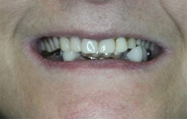 Before Lanier Valley Dentistry treatment