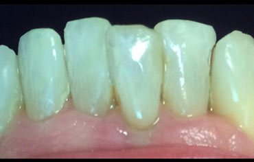 After Lanier Valley Dentistry treatment