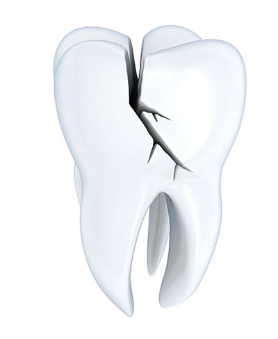 Why Does a Damaged Tooth Need to Be Treated, and How Do Crowns Help?